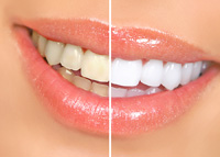 Teeth Whitening Shelby Township